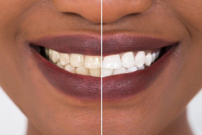 teeth dying enhancements